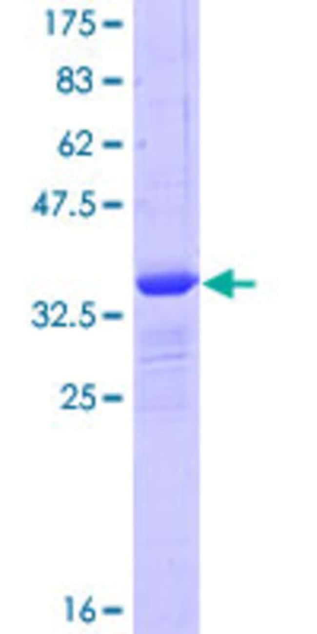 AbnovaHuman GLIPR1 Partial ORF (NP_006842, 23 a.a. - 99 a.a.) Recombinant