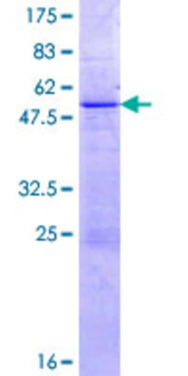 Abnova Human KLK11 Full-length ORF (NP_006844.1, 1 a.a. - 250 a.a.) Recombinant