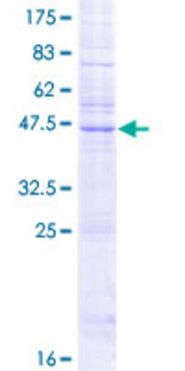 Abnova Human KDELR2 Full-length ORF (NP_006845.1, 1 a.a. - 212 a.a.) Recombinant
