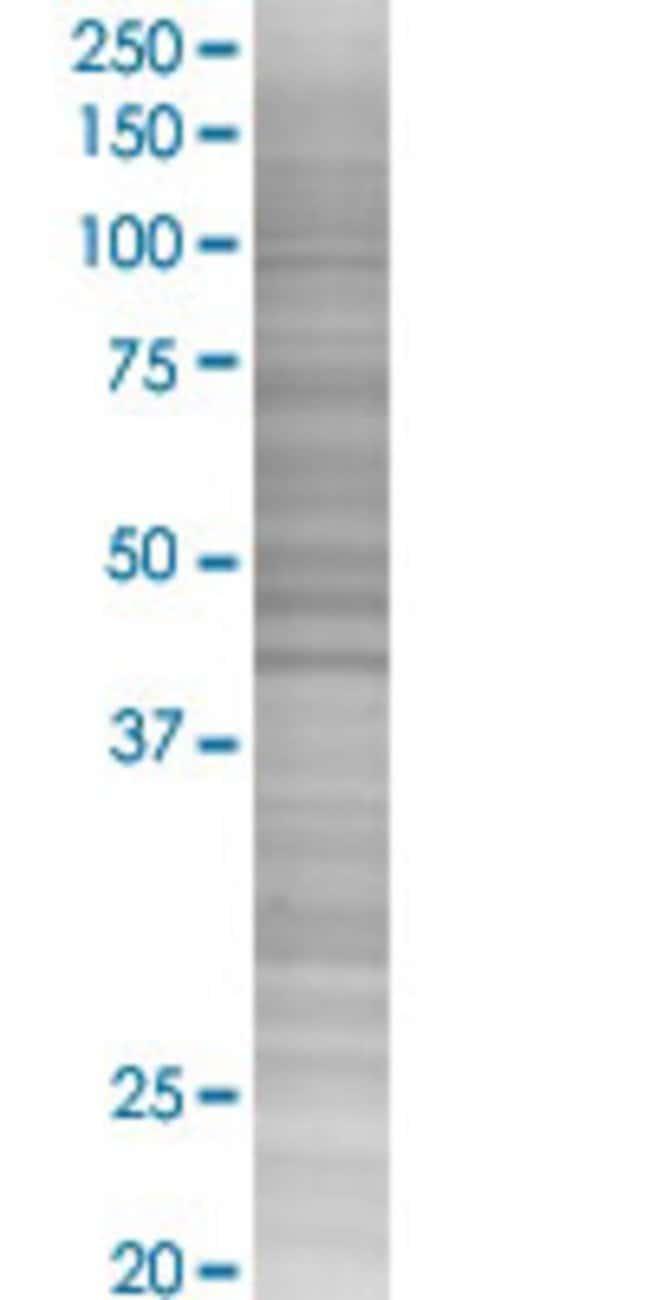 Abnova KDELR2 293T Cell Transient Overexpression Lysate (Denatured) 100µL:Life