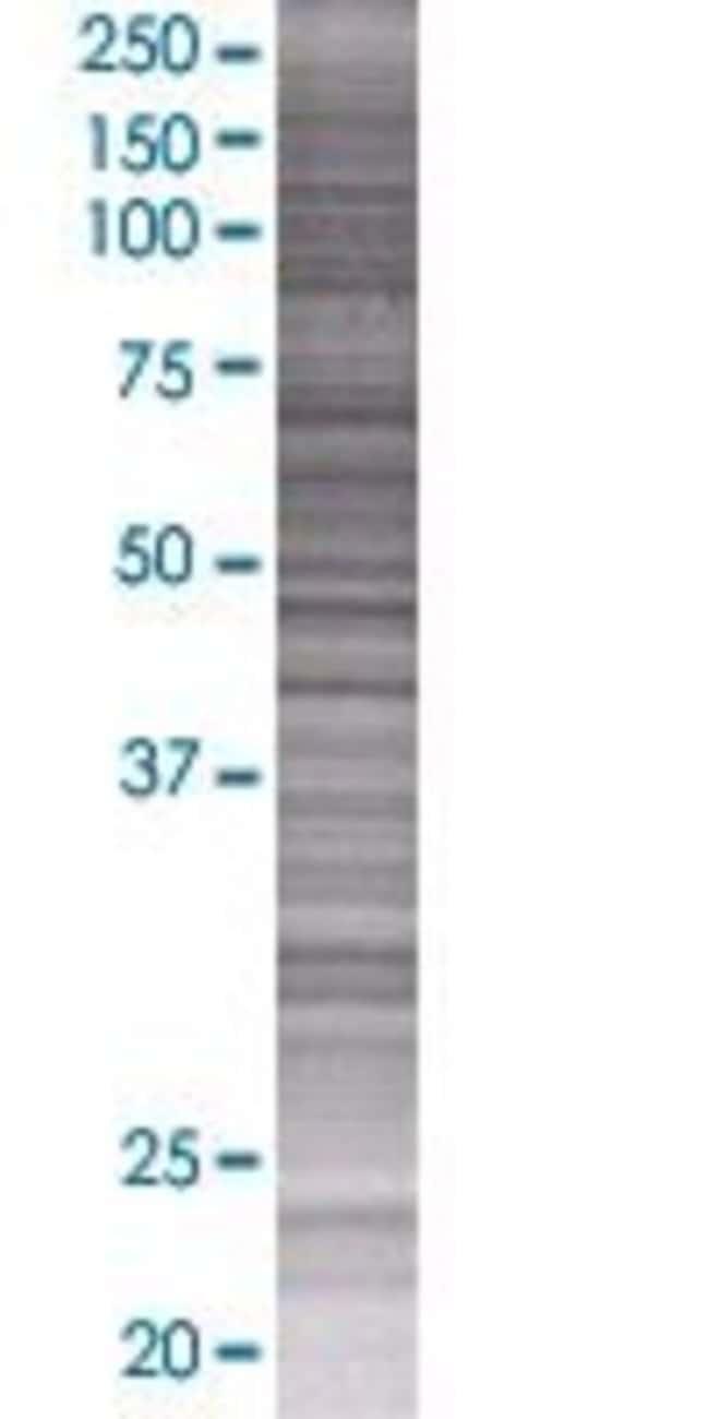 AbnovaATF7 293T Cell Transient Overexpression Lysate (Denatured) 100μL:Protein