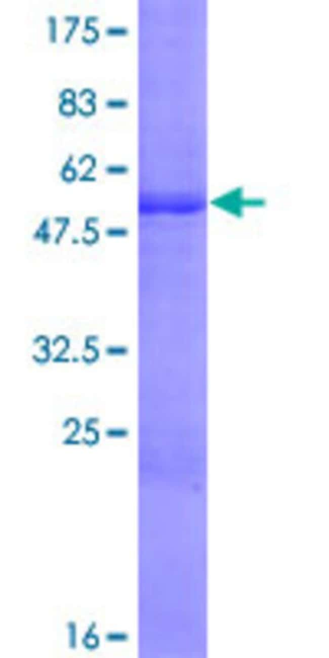 AbnovaHuman TMED1 Full-length ORF (NP_006849.1, 1 a.a. - 227 a.a.) Recombinant