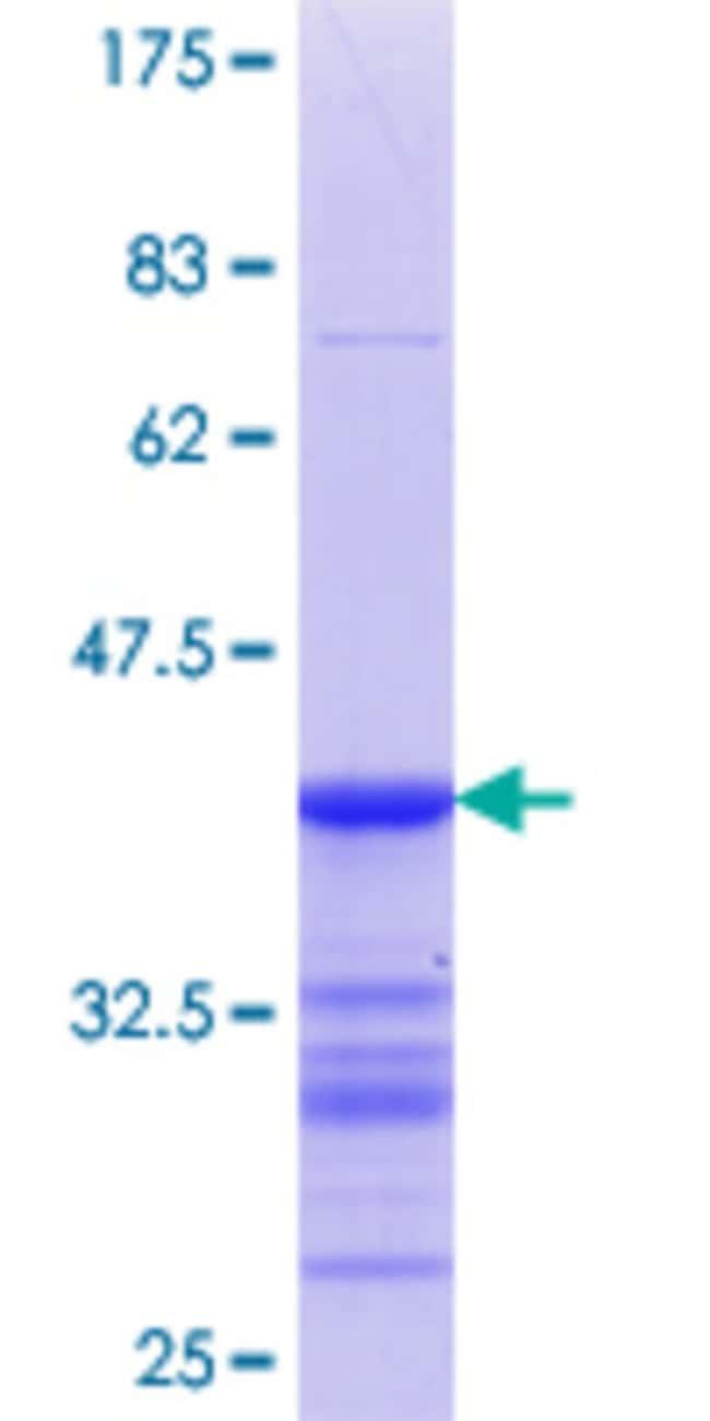 Abnova Human LILRA3 Partial ORF (NP_006856.2, 340 a.a. - 439 a.a.) Recombinant