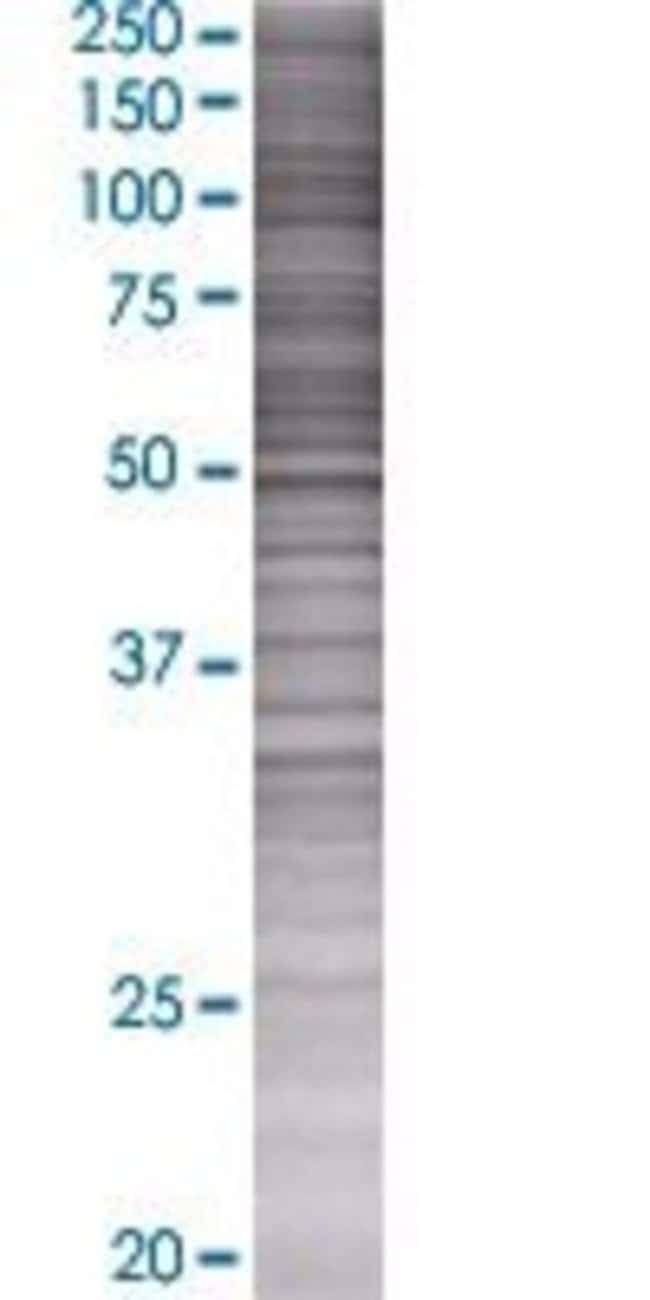 Abnova LILRA3 293T Cell Transient Overexpression Lysate (Denatured) (T01)