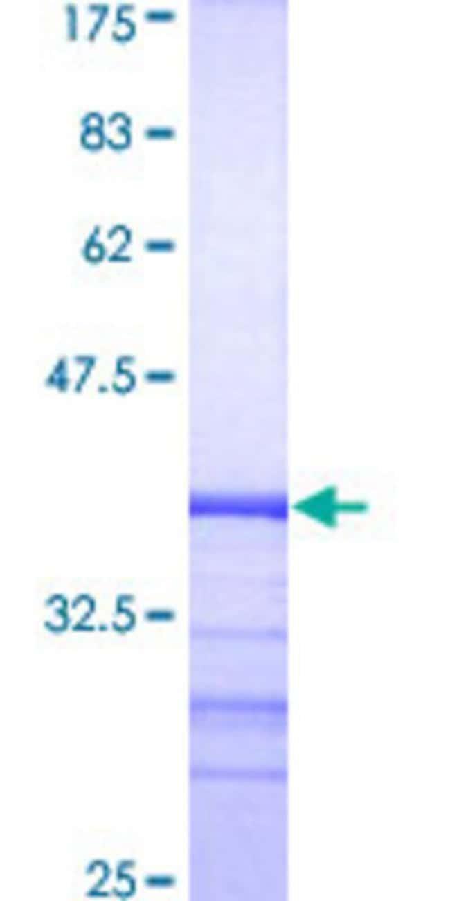 AbnovaHuman RAB31 Partial ORF (AAH01148, 96 a.a. - 195 a.a.) Recombinant