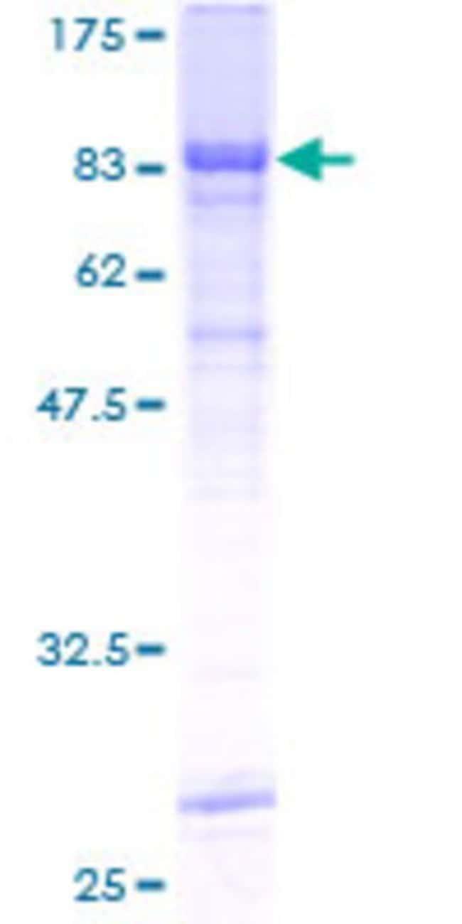 AbnovaHuman RIPK3 Full-length ORF (AAH62584, 1 a.a. - 518 a.a.) Recombinant