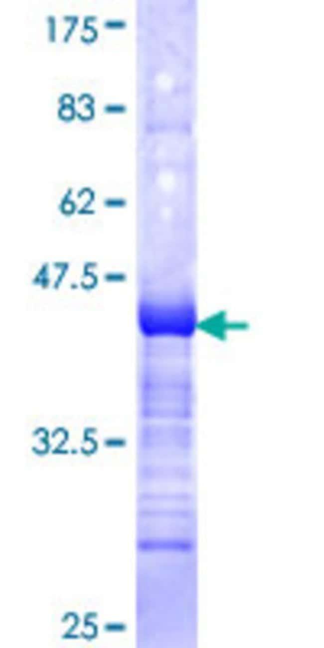 AbnovaHuman ALF Partial ORF (NP_006863, 251 a.a. - 348 a.a.) Recombinant