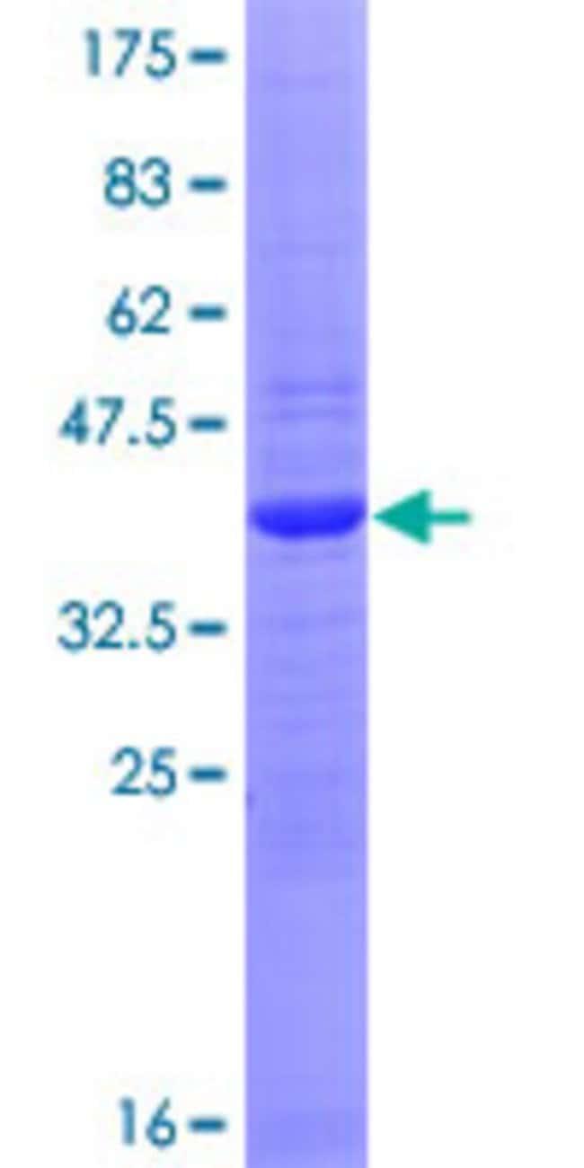 AbnovaHuman SMA4 Full-length ORF (AAI71739.1, 1 a.a. - 140 a.a.) Recombinant