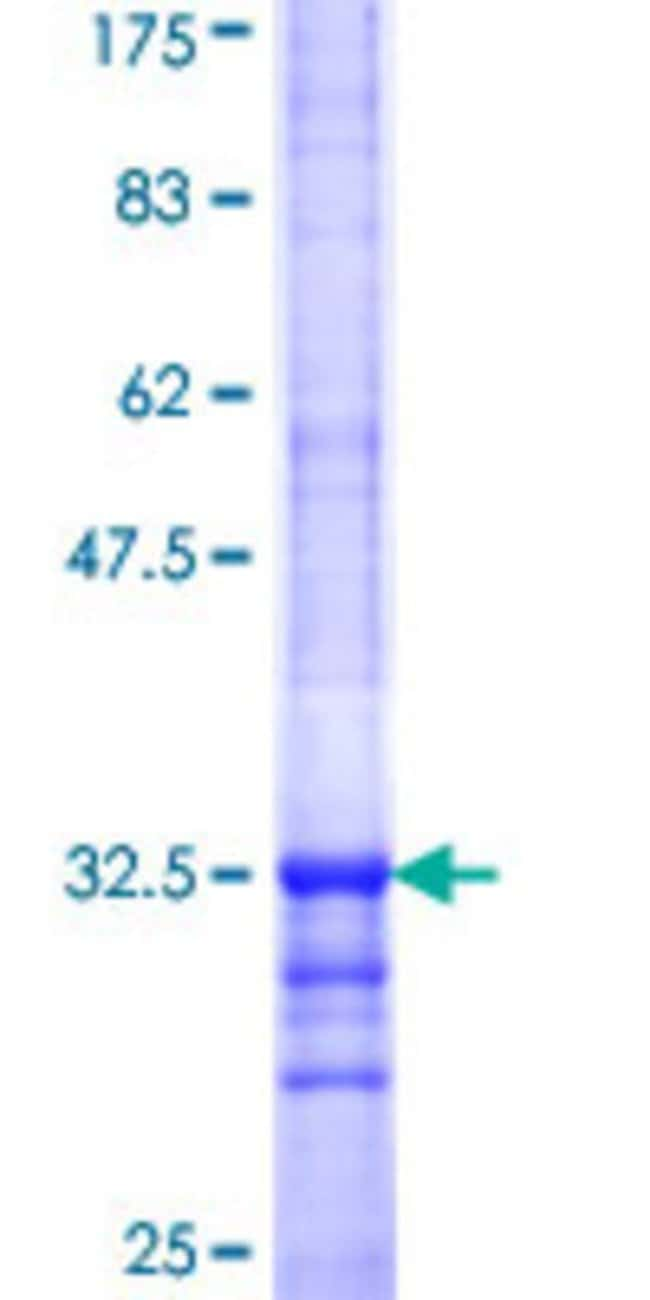 AbnovaHuman SLC35D2 Partial ORF (NP_008932, 74 a.a. - 131 a.a.) Recombinant