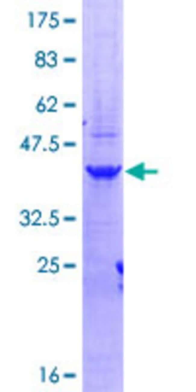 AbnovaHuman CPSF6 Partial ORF (NP_008938, 37 a.a. - 136 a.a.) Recombinant