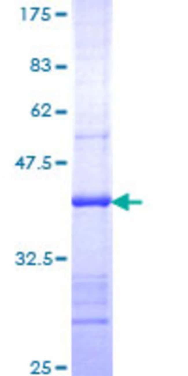 AbnovaHuman UBE2C Partial ORF (NP_008950, 70 a.a. - 179 a.a.) Recombinant