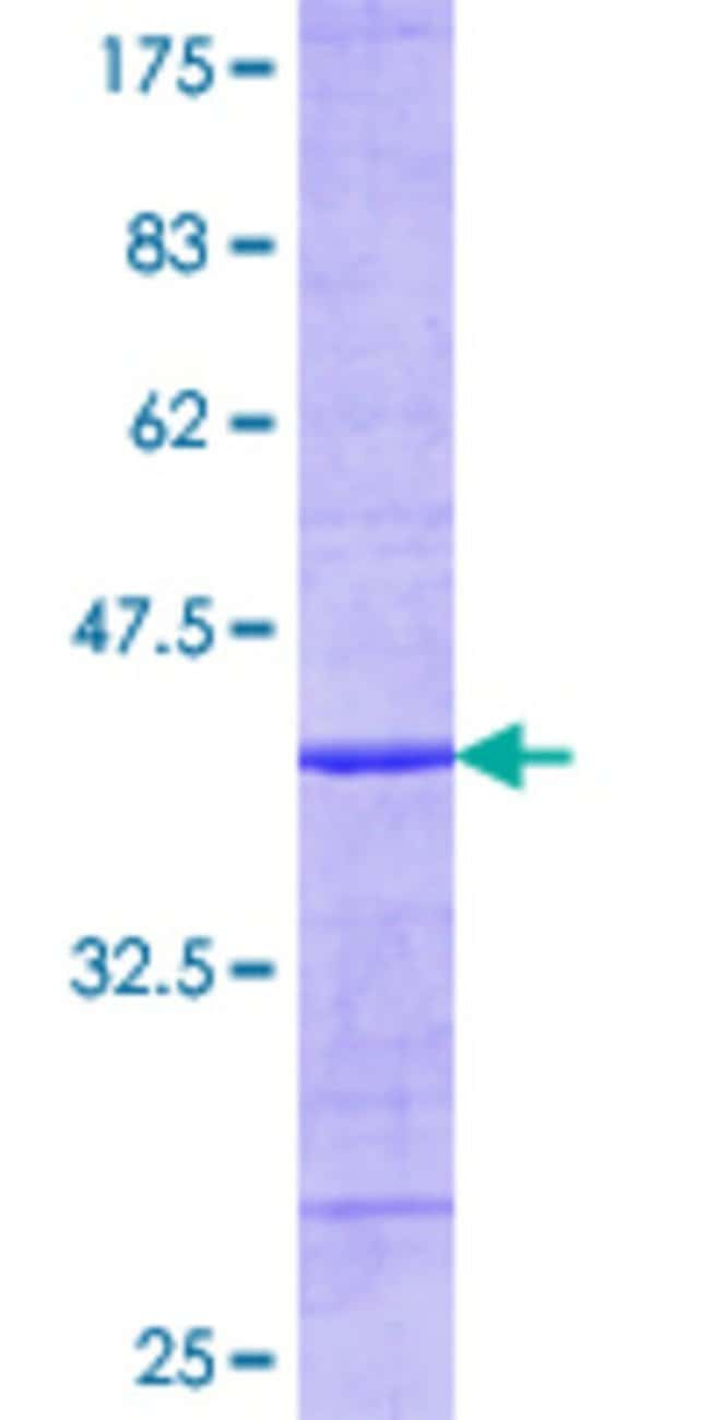 AbnovaHuman UBE2C Partial ORF (AAH16292.1, 25 a.a. - 129 a.a.) Recombinant