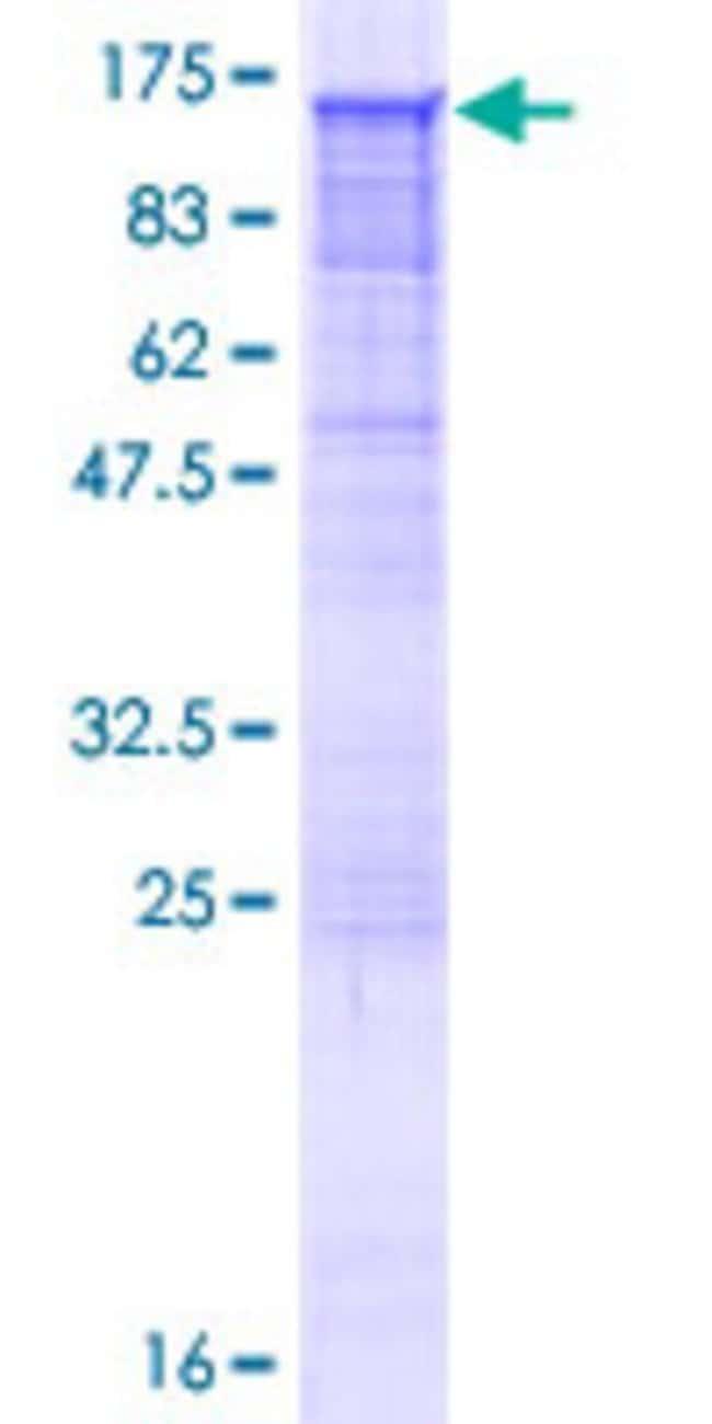 AbnovaHuman RAPGEF4 Full-length ORF (AAH24004.1, 1 a.a. - 1011 a.a.) Recombinant