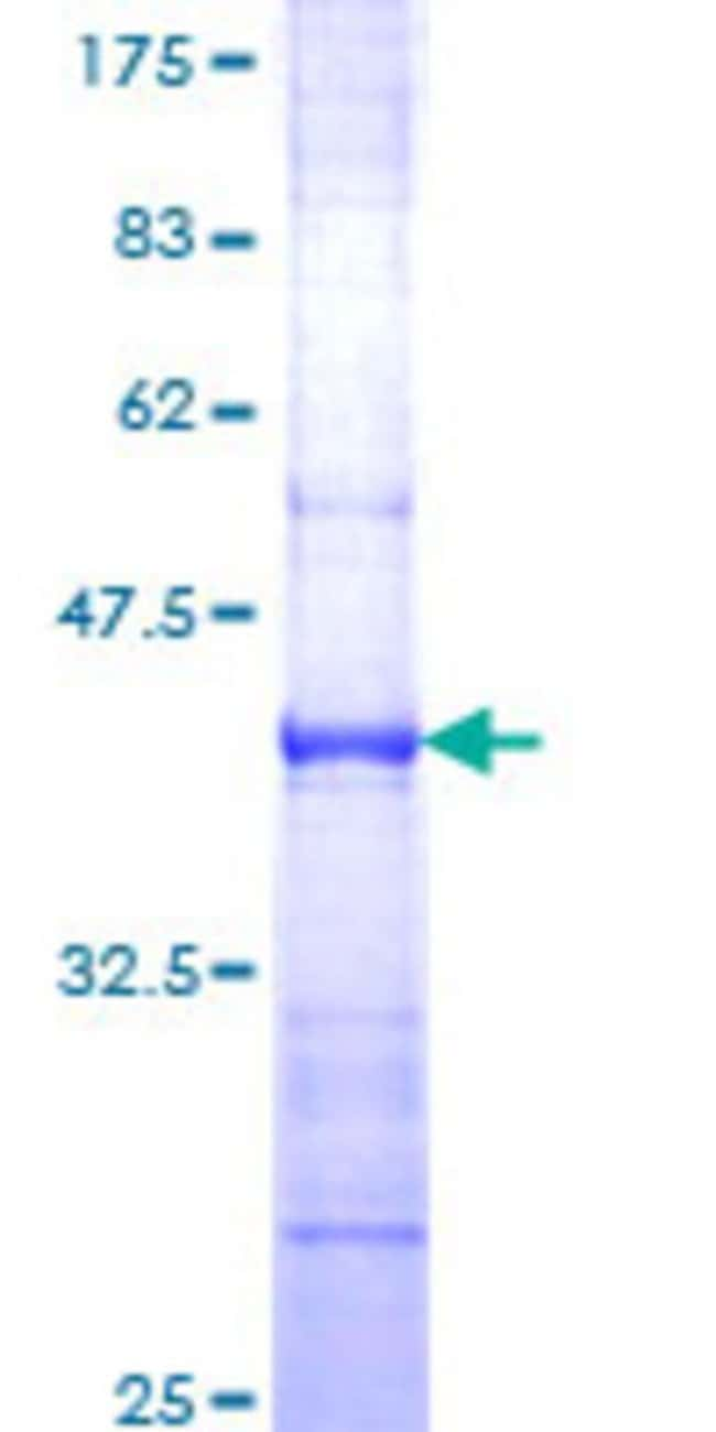 Abnova™Human RAPGEF4 Partial ORF (AAH24004, 1 a.a. - 110 a.a.) Recombinant Protein with GST-tag at N-terminal 25μg Abnova™Human RAPGEF4 Partial ORF (AAH24004, 1 a.a. - 110 a.a.) Recombinant Protein with GST-tag at N-terminal