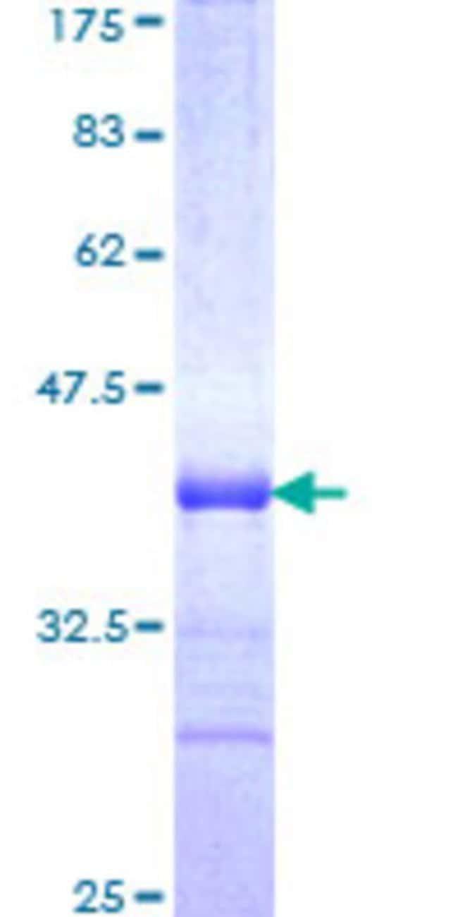 AbnovaHuman TRIM31 Partial ORF (NP_008959, 1 a.a. - 100 a.a.) Recombinant