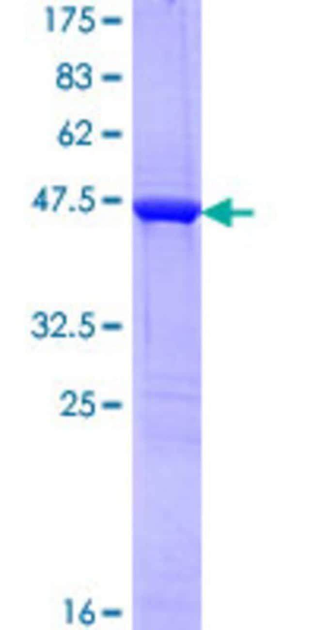 AbnovaHuman STMN2 Full-length ORF (AAH06302.1, 1 a.a. - 179 a.a.) Recombinant