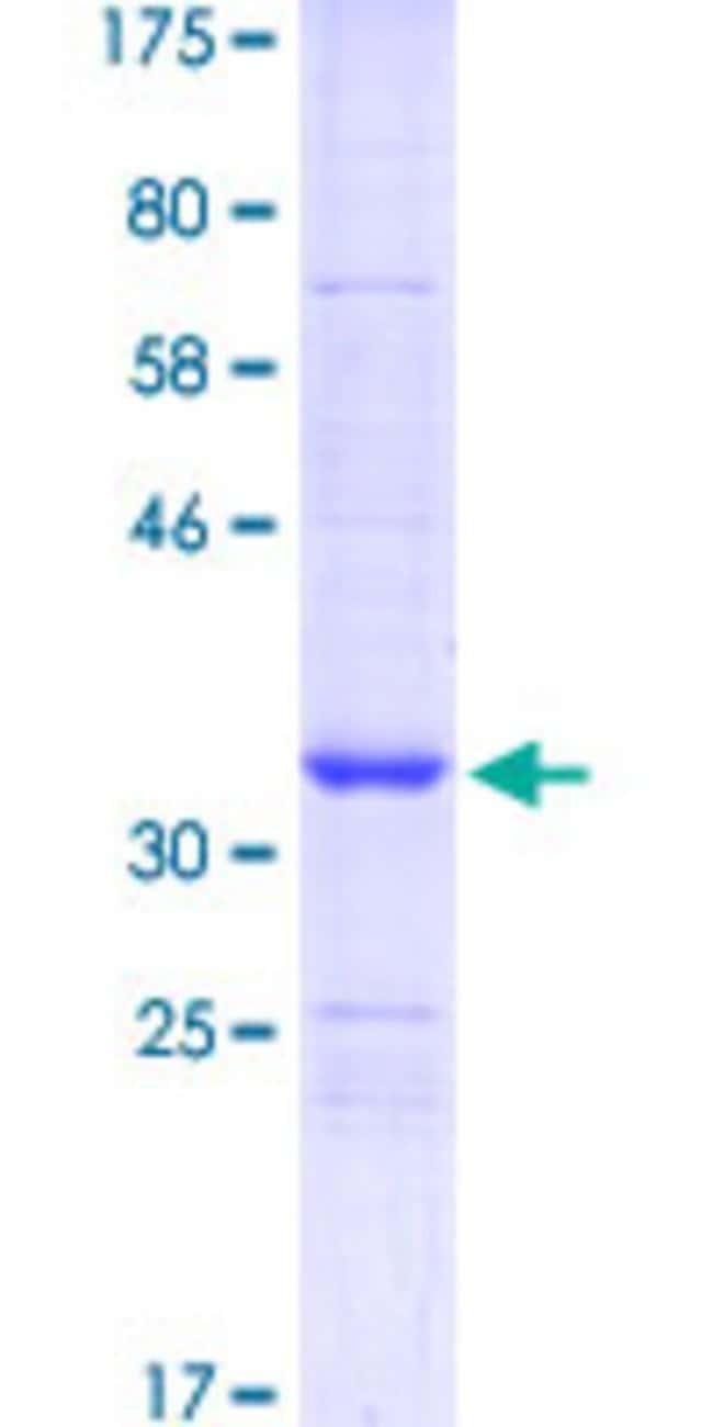 AbnovaHuman STMN2 Partial ORF (NP_008960, 1 a.a. - 90 a.a.) Recombinant