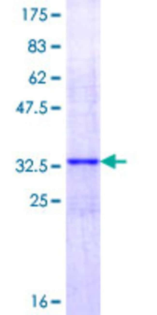 AbnovaHuman ADAMTS13 Full-length ORF (AAH39251.1, 1 a.a. - 75 a.a.) Recombinant