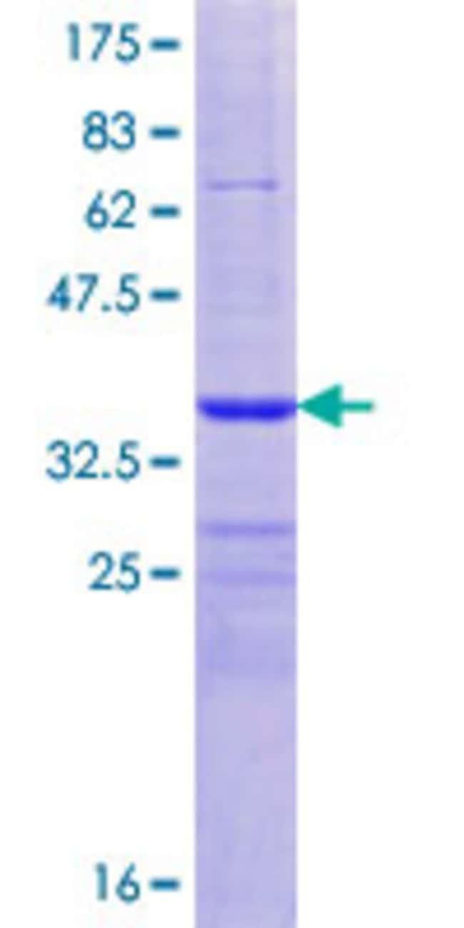 AbnovaHuman ADAMTS5 Partial ORF (NP_008969.1, 832 a.a. - 930 a.a.) Recombinant