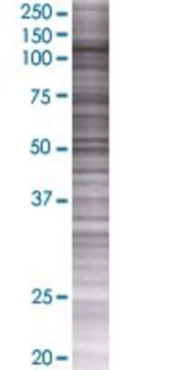 Abnova HNRPUL1 293T Cell Transient Overexpression Lysate (Denatured) (T01)