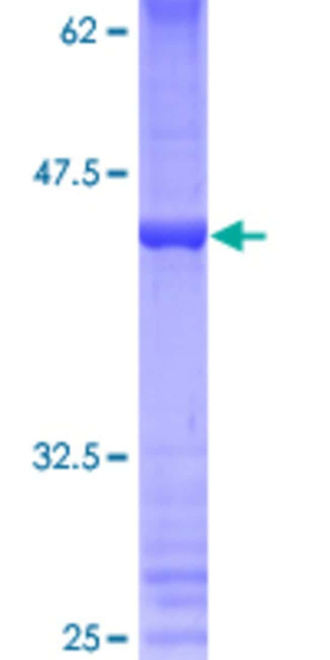 Abnova™Human PRDM5 Full-length ORF (AAH66942.1, 1 a.a. - 111 a.a.) Recombinant Protein with GST-tag at N-terminal 25μg Abnova™Human PRDM5 Full-length ORF (AAH66942.1, 1 a.a. - 111 a.a.) Recombinant Protein with GST-tag at N-terminal