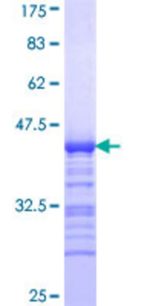 AbnovaHuman CIT Partial ORF (NP_009105, 1928 a.a. - 2027 a.a.) Recombinant