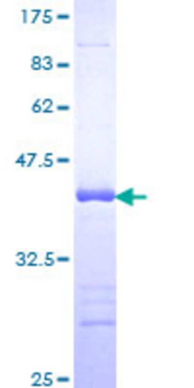 AbnovaHuman FAF1 Partial ORF (NP_008982, 551 a.a. - 650 a.a.) Recombinant