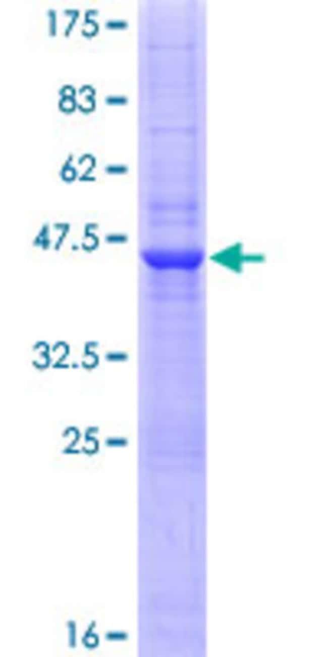 AbnovaHuman CD160 Full-length ORF (NP_008984.1, 1 a.a. - 181 a.a.) Recombinant