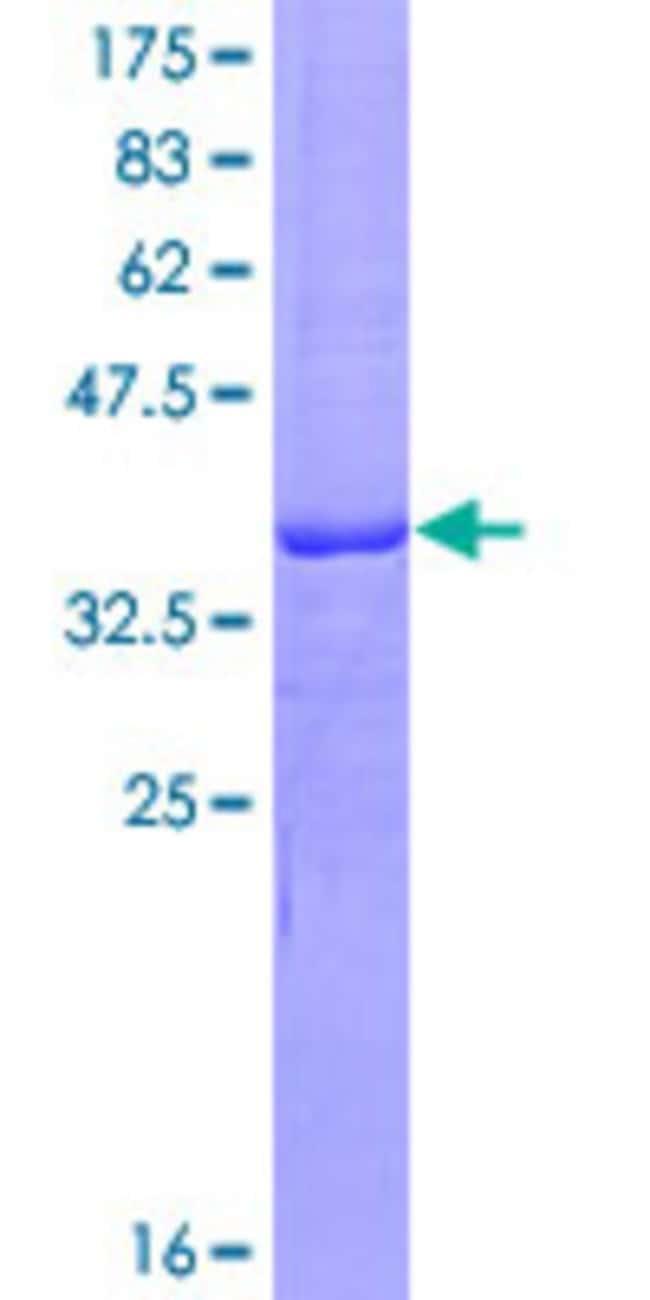 AbnovaHuman CD160 Partial ORF (AAH14465.1, 27 a.a. - 136 a.a.) Recombinant