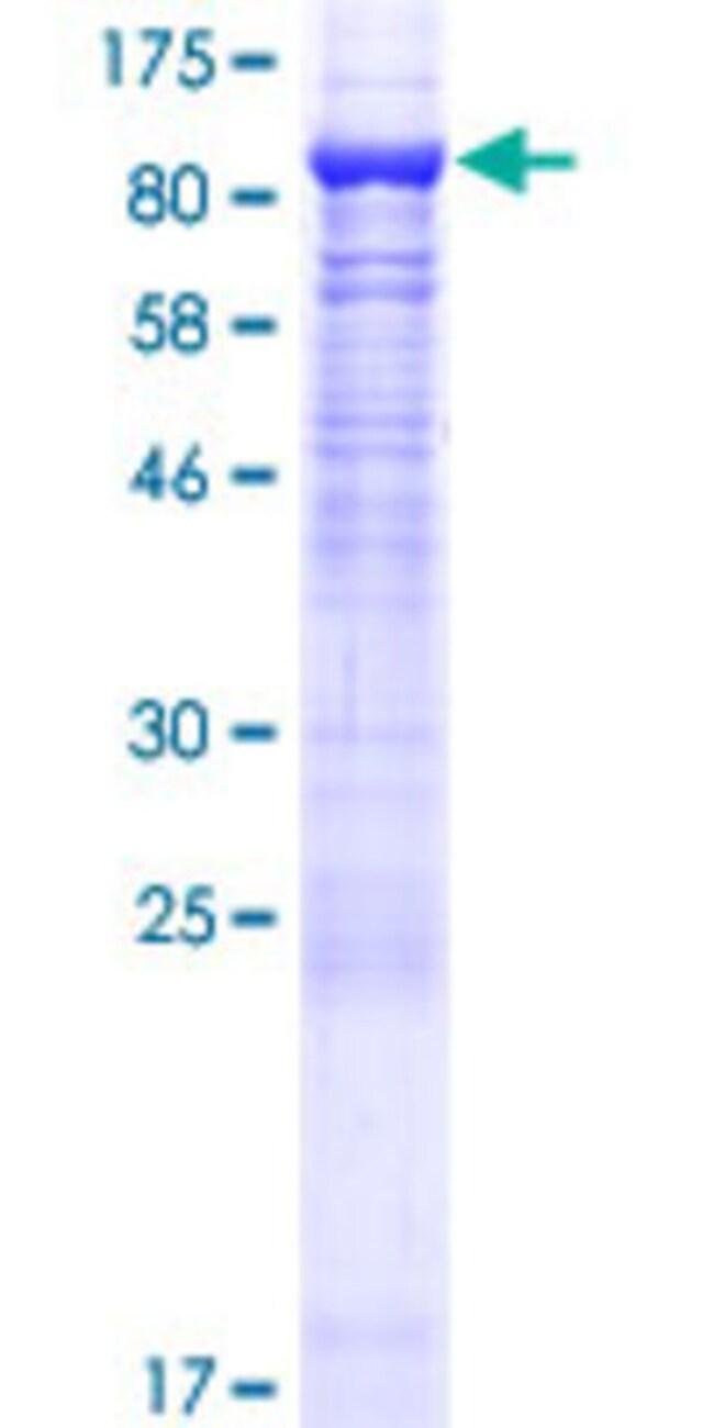 AbnovaHuman CAPN11 Full-length ORF (AAH33733.1, 1 a.a. - 702 a.a.) Recombinant