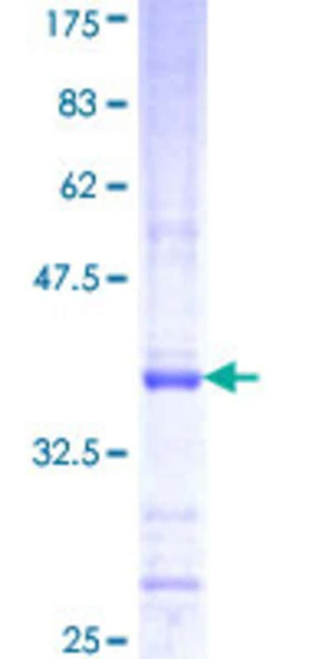 Abnova™Human CAPN11 Partial ORF (NP_008989, 557 a.a. - 651 a.a.) Recombinant Protein with GST-tag at N-terminal 25μg Abnova™Human CAPN11 Partial ORF (NP_008989, 557 a.a. - 651 a.a.) Recombinant Protein with GST-tag at N-terminal