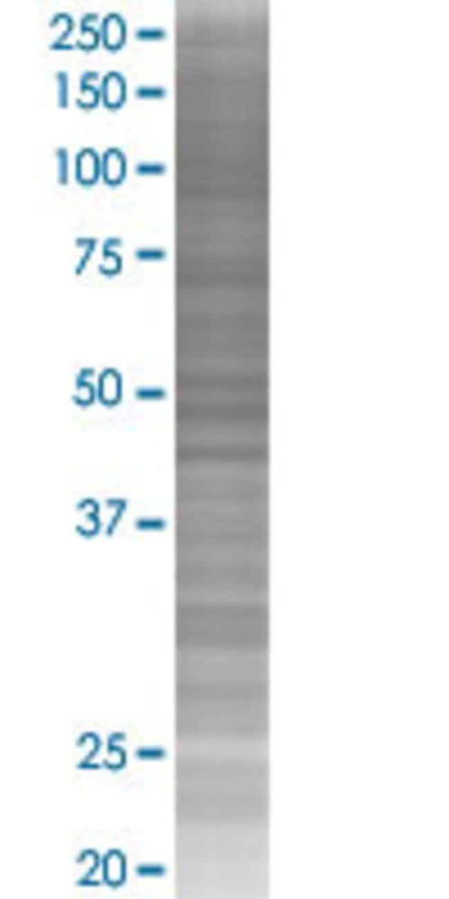 Abnova KPTN 293T Cell Transient Overexpression Lysate (Denatured) (T02)
