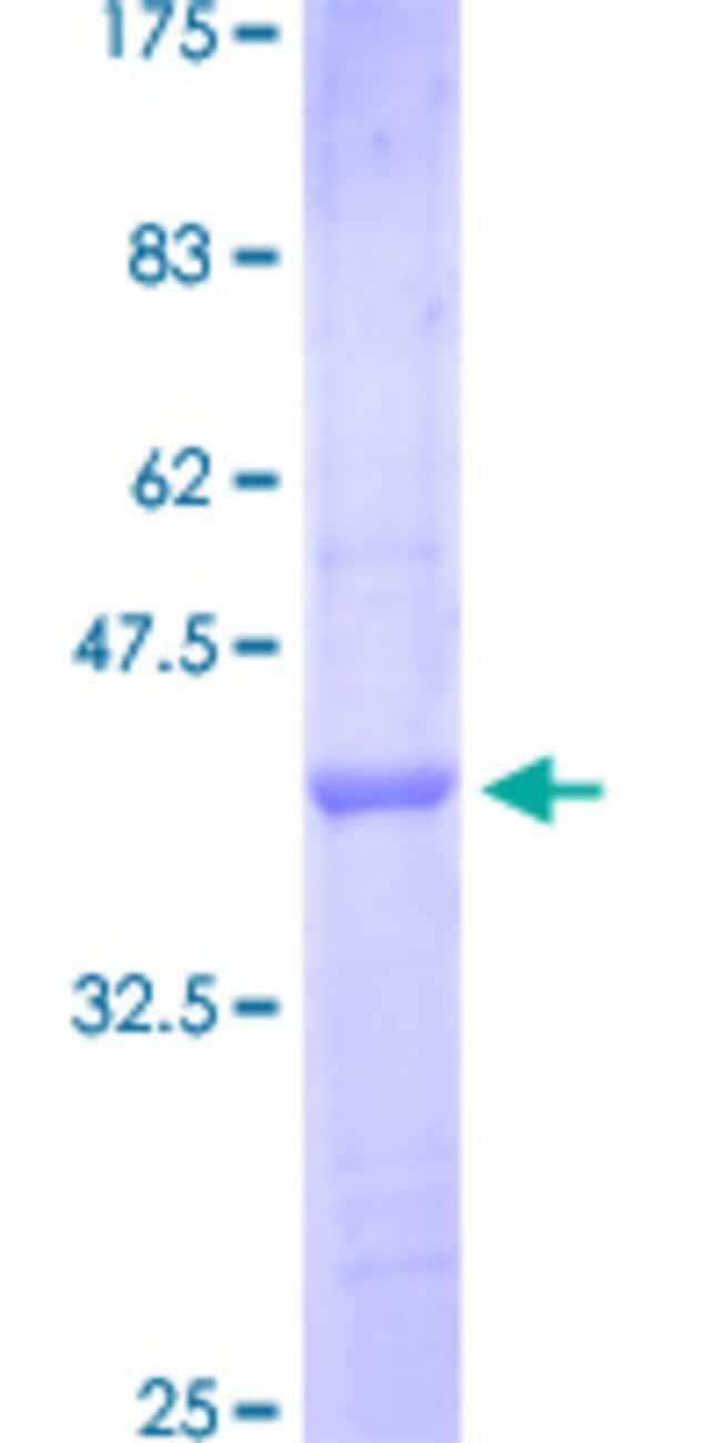 AbnovaHuman IL1RAPL1 Partial ORF (NP_055086.1, 151 a.a. - 250 a.a.) Recombinant