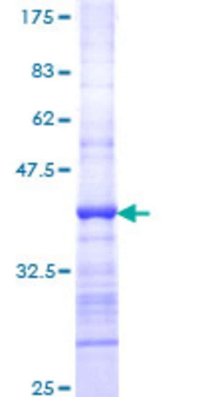 AbnovaHuman DMC1 Partial ORF (NP_008999, 237 a.a. - 339 a.a.) Recombinant