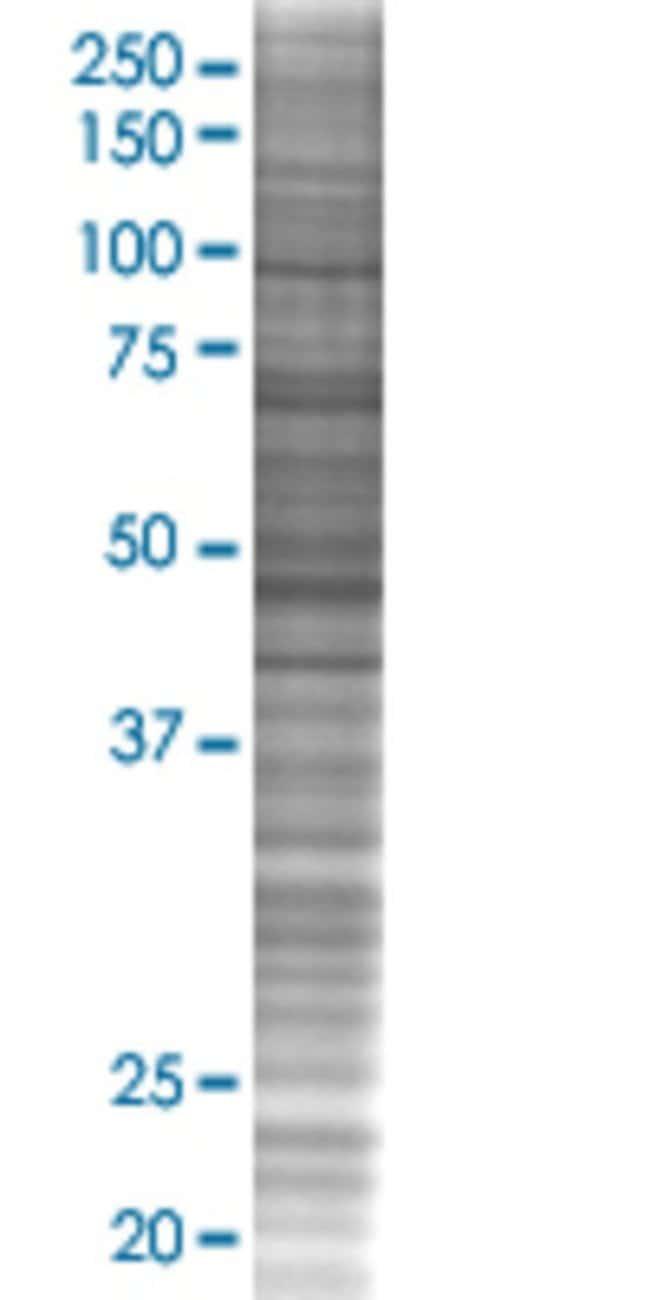 Abnova HRASLS3 293T Cell Transient Overexpression Lysate (Denatured) 100µL:Life