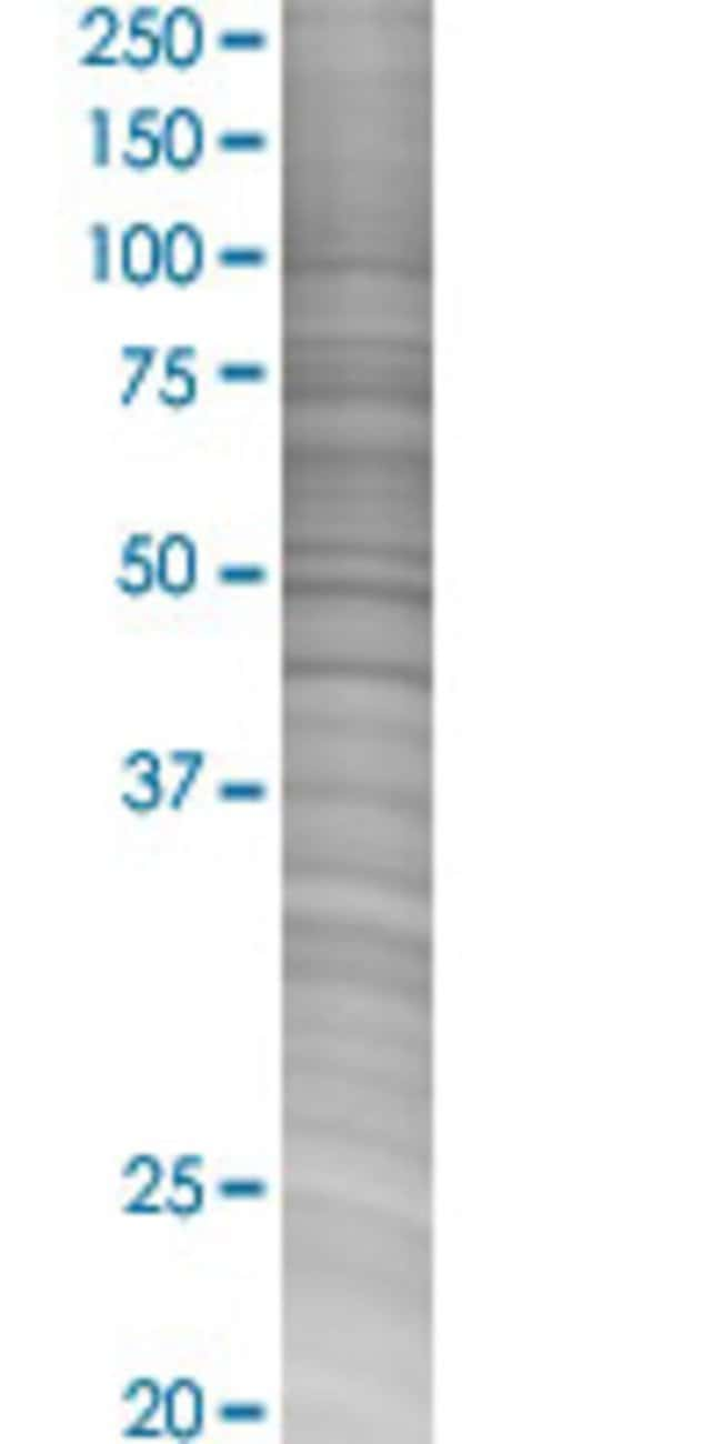 Abnova HHLA2 293T Cell Transient Overexpression Lysate (Denatured) (T02)