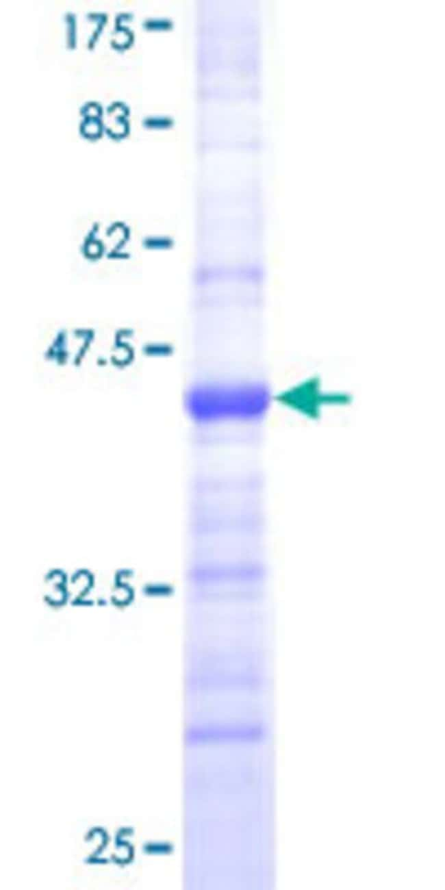 AbnovaHuman CORO1A Partial ORF (NP_009005, 360 a.a. - 461 a.a.) Recombinant