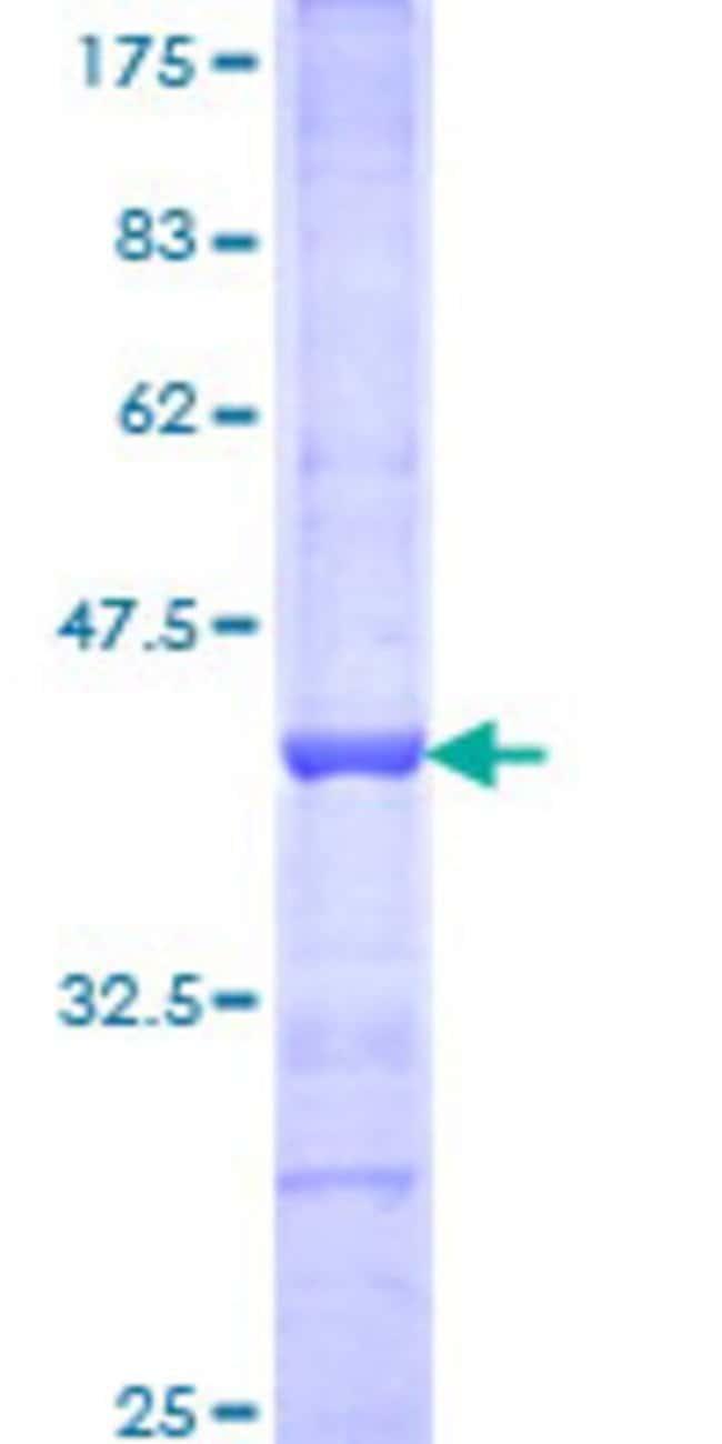 AbnovaHuman BAZ1A Partial ORF (NP_038476, 1457 a.a. - 1556 a.a.) Recombinant