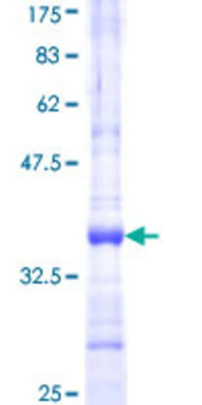 Abnova™Human INMT Partial ORF (NP_006765, 174 a.a. - 263 a.a.) Recombinant Protein with GST-tag at N-terminal 25μg Abnova™Human INMT Partial ORF (NP_006765, 174 a.a. - 263 a.a.) Recombinant Protein with GST-tag at N-terminal