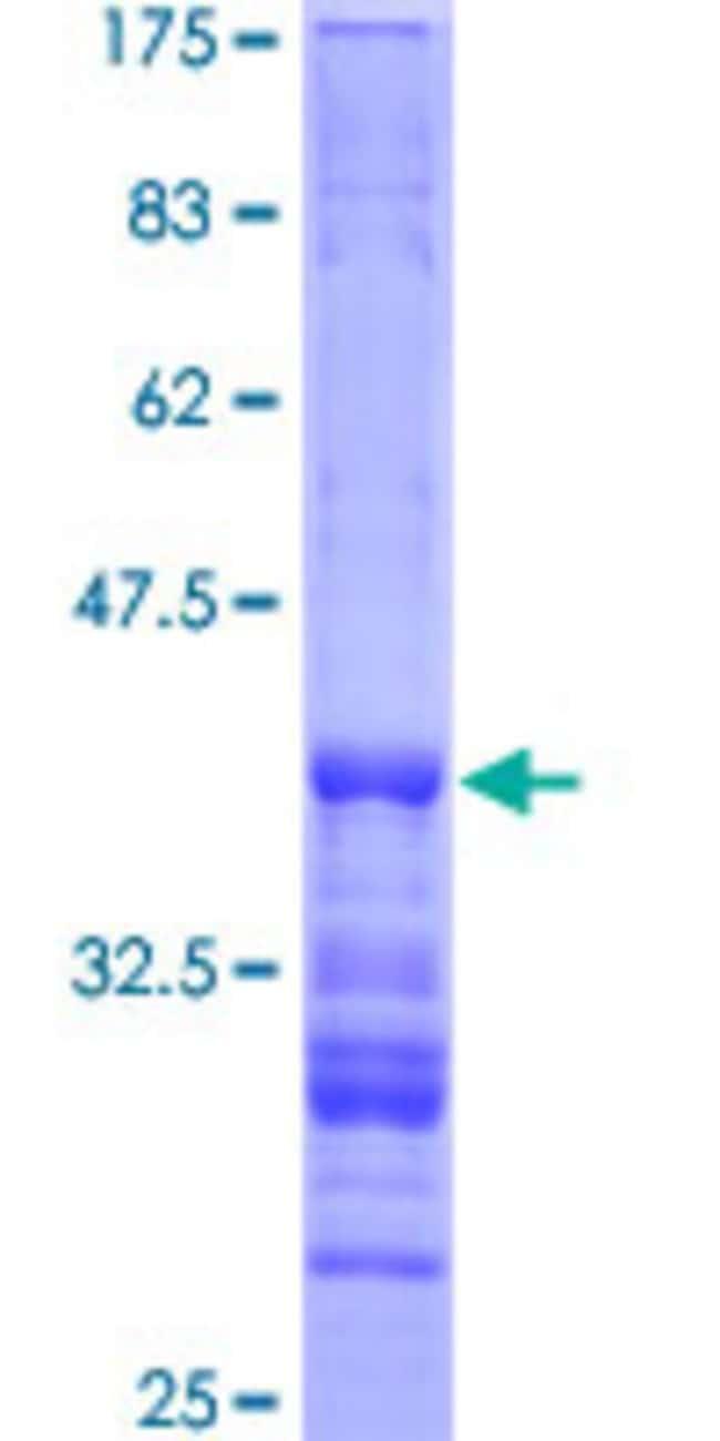 AbnovaHuman PKP3 Partial ORF (NP_009114, 225 a.a. - 324 a.a.) Recombinant