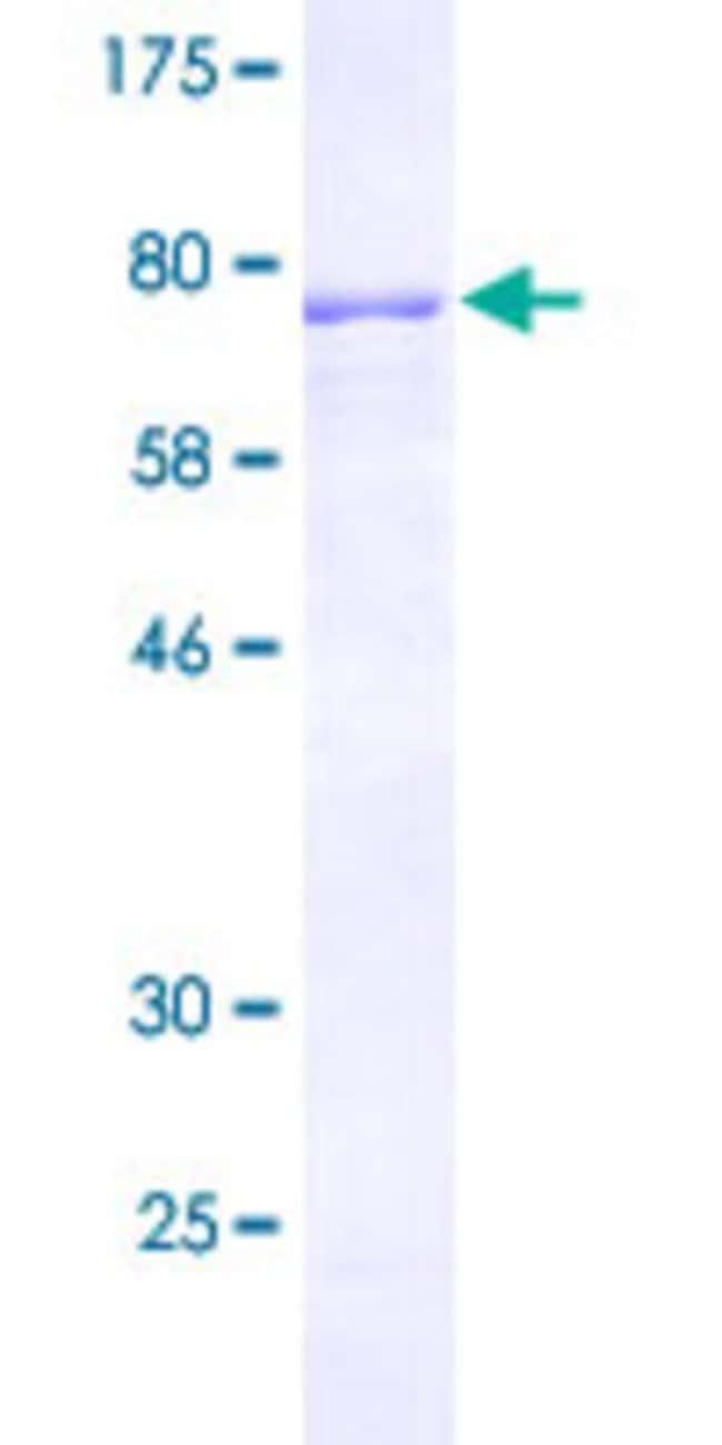 AbnovaHuman TNRC4 Full-length ORF (NP_009116.3, 1 a.a. - 465 a.a.) Recombinant