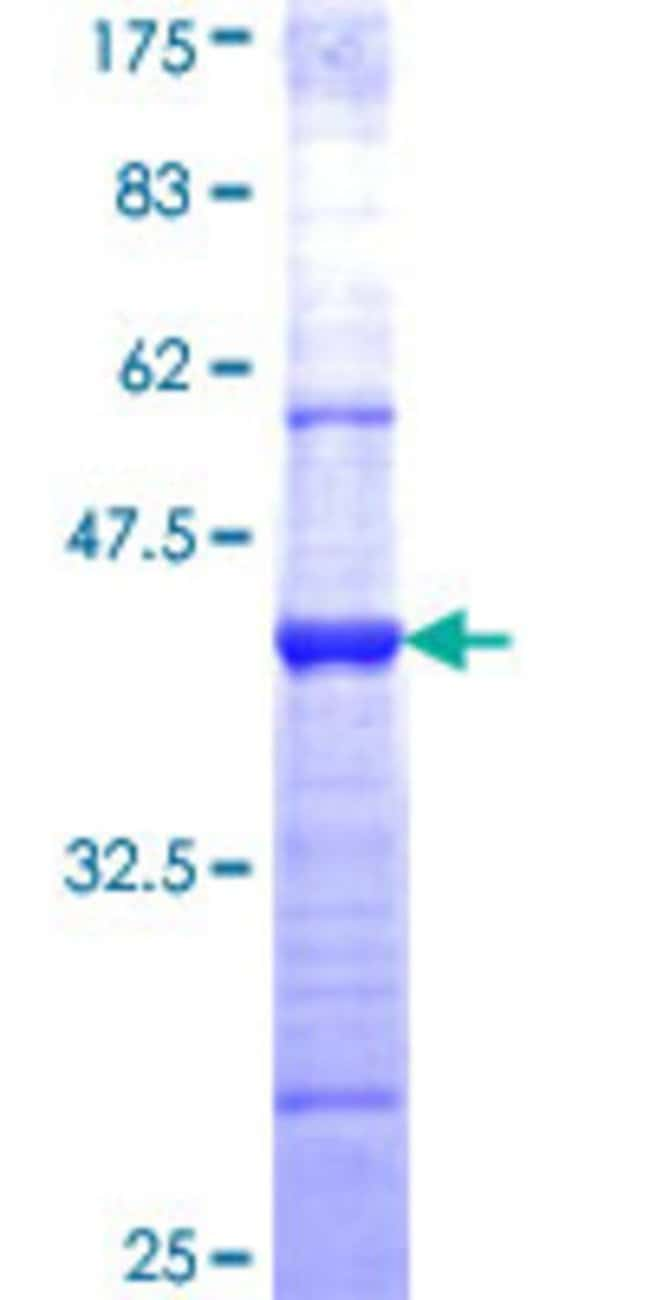 Abnova™Human WIF1 Partial ORF (NP_009122, 29 a.a. - 138 a.a.) Recombinant Protein with GST-tag at N-terminal 25μg Abnova™Human WIF1 Partial ORF (NP_009122, 29 a.a. - 138 a.a.) Recombinant Protein with GST-tag at N-terminal