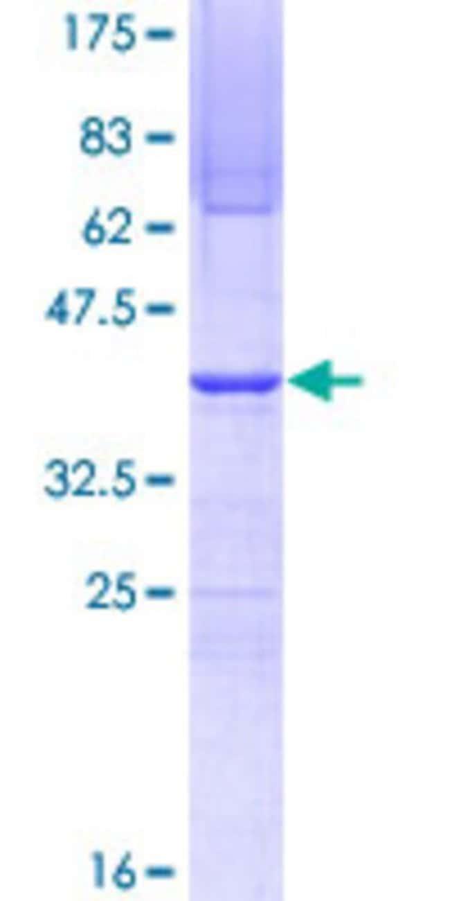 AbnovaHuman SUPT16H Partial ORF (NP_009123, 608 a.a. - 715 a.a.) Recombinant