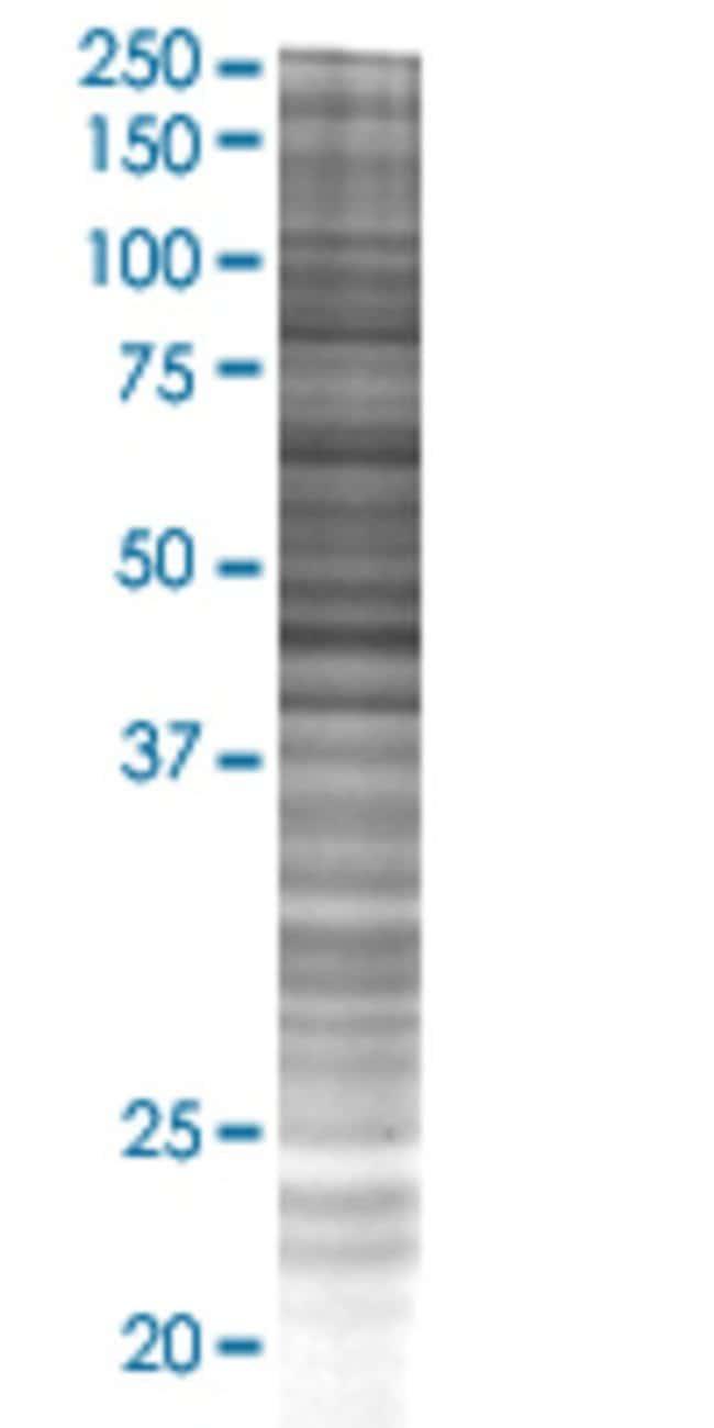 AbnovaANXA10 293T Cell Transient Overexpression Lysate (Denatured) 100μL:Protein