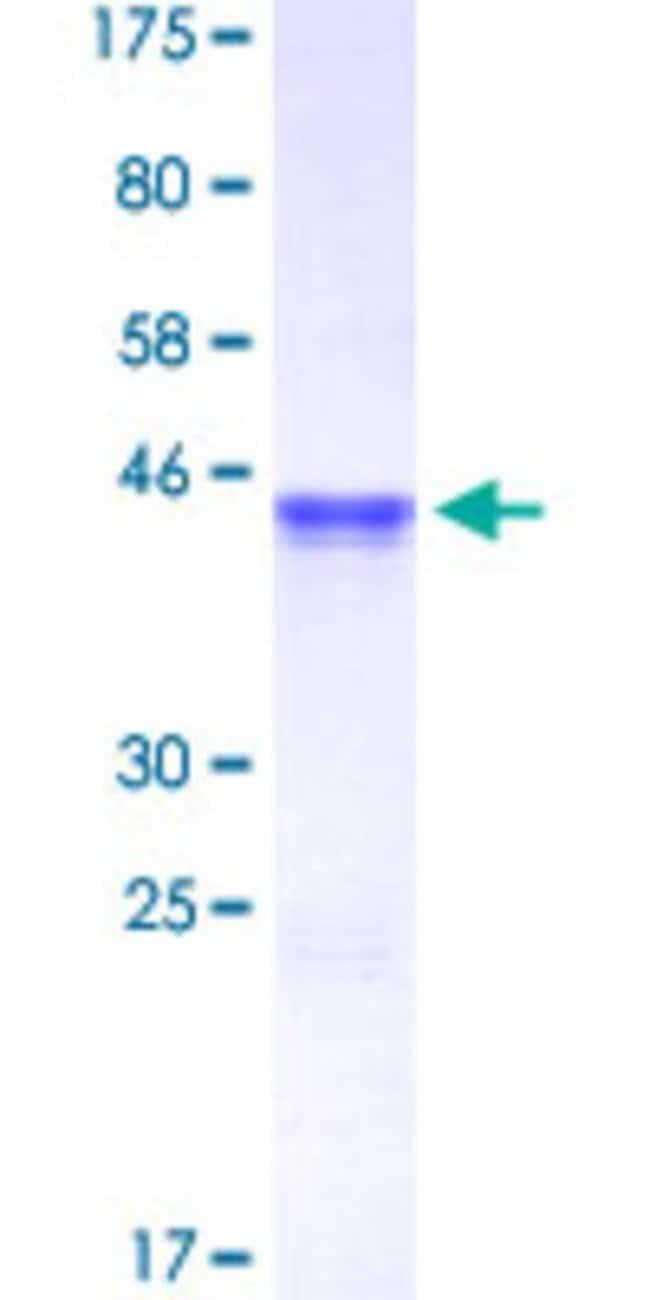 AbnovaHuman CHEK2 Partial ORF (AAH04207, 1 a.a. - 100 a.a.) Recombinant