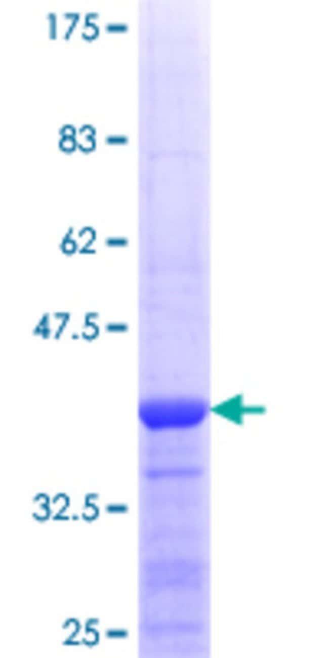 AbnovaHuman PROSC Partial ORF (NP_009129.1, 1 a.a. - 100 a.a.) Recombinant