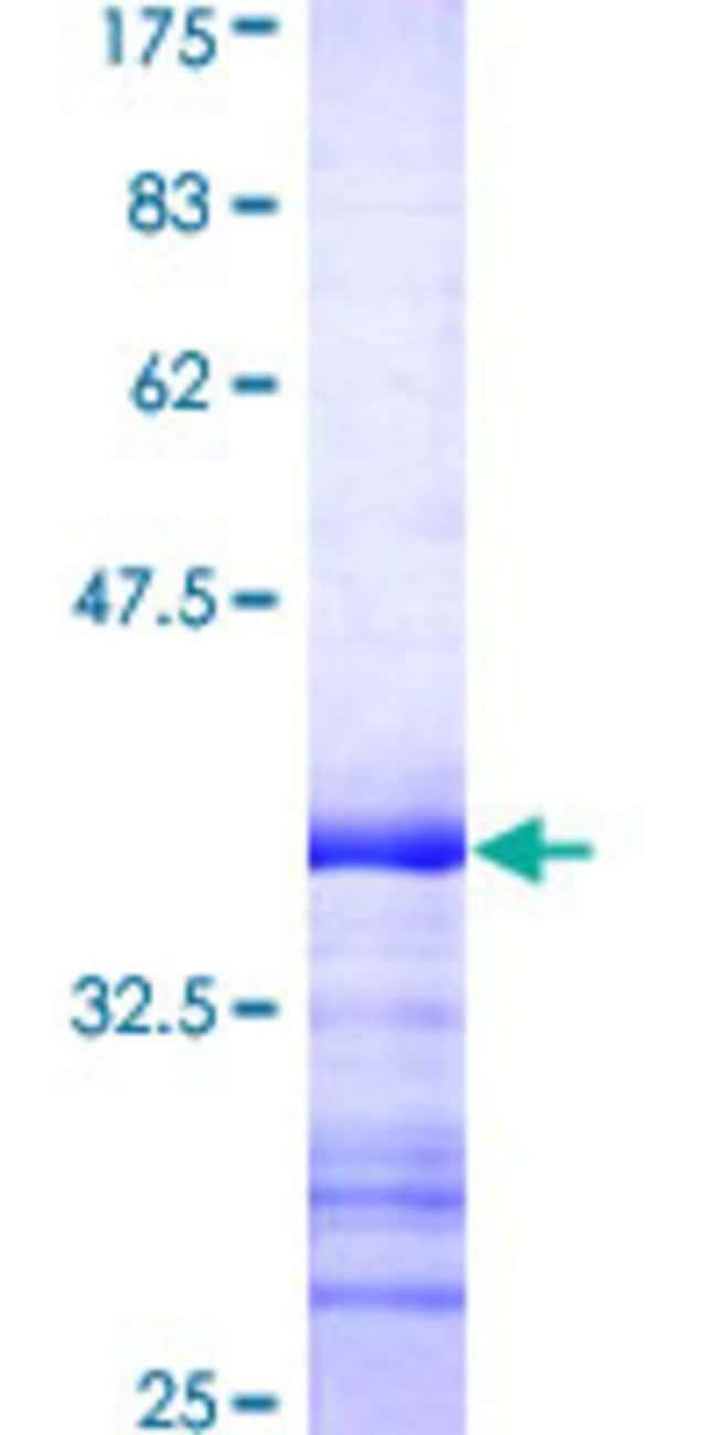 AbnovaHuman IRAK3 Partial ORF (AAH57800, 497 a.a. - 596 a.a.) Recombinant