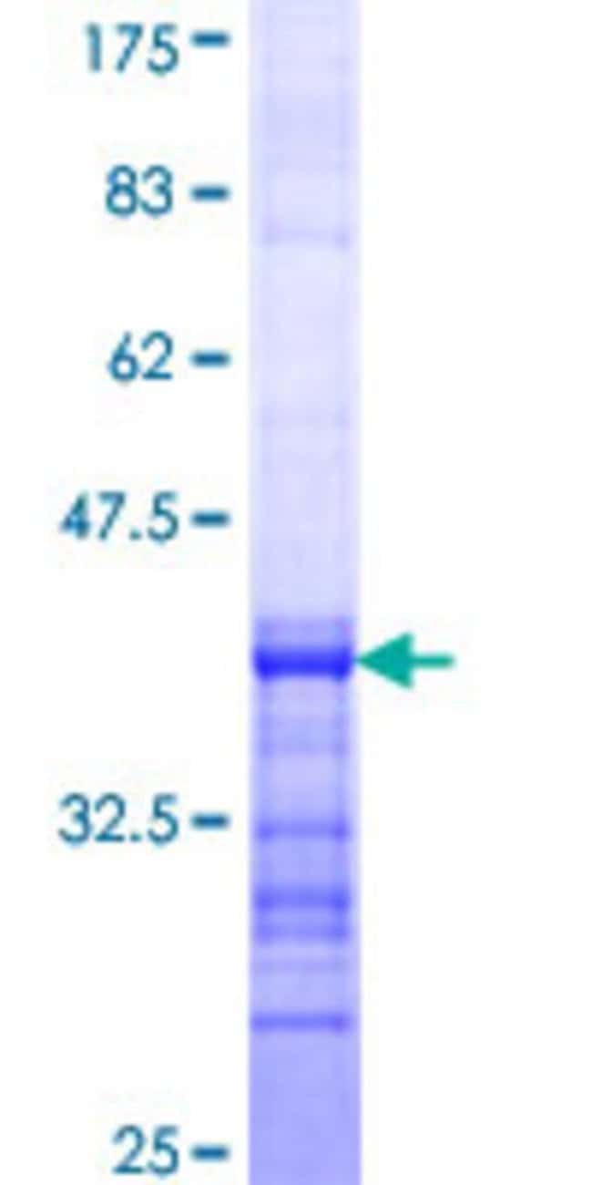 Abnova™Human AKAP10 Partial ORF (NP_009133, 1 a.a. - 100 a.a.) Recombinant Protein with GST-tag at N-terminal 10μg Abnova™Human AKAP10 Partial ORF (NP_009133, 1 a.a. - 100 a.a.) Recombinant Protein with GST-tag at N-terminal