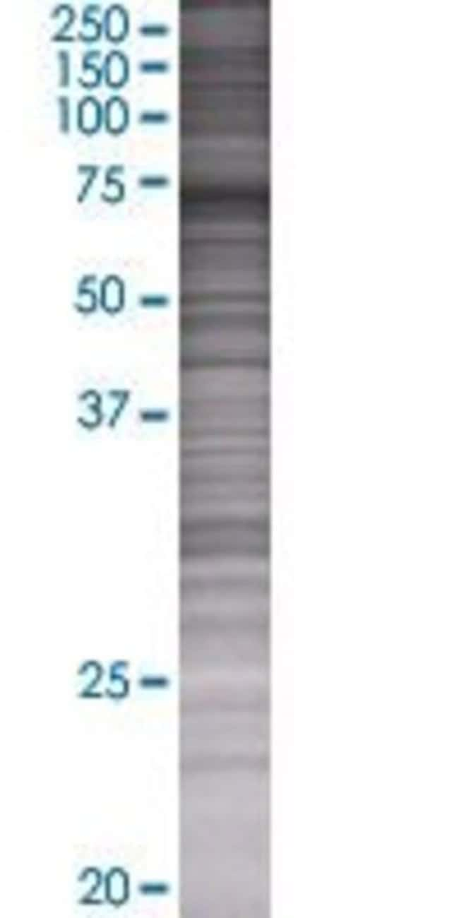 AbnovaAKAP10 293T Cell Transient Overexpression Lysate (Denatured) 100μL:Protein