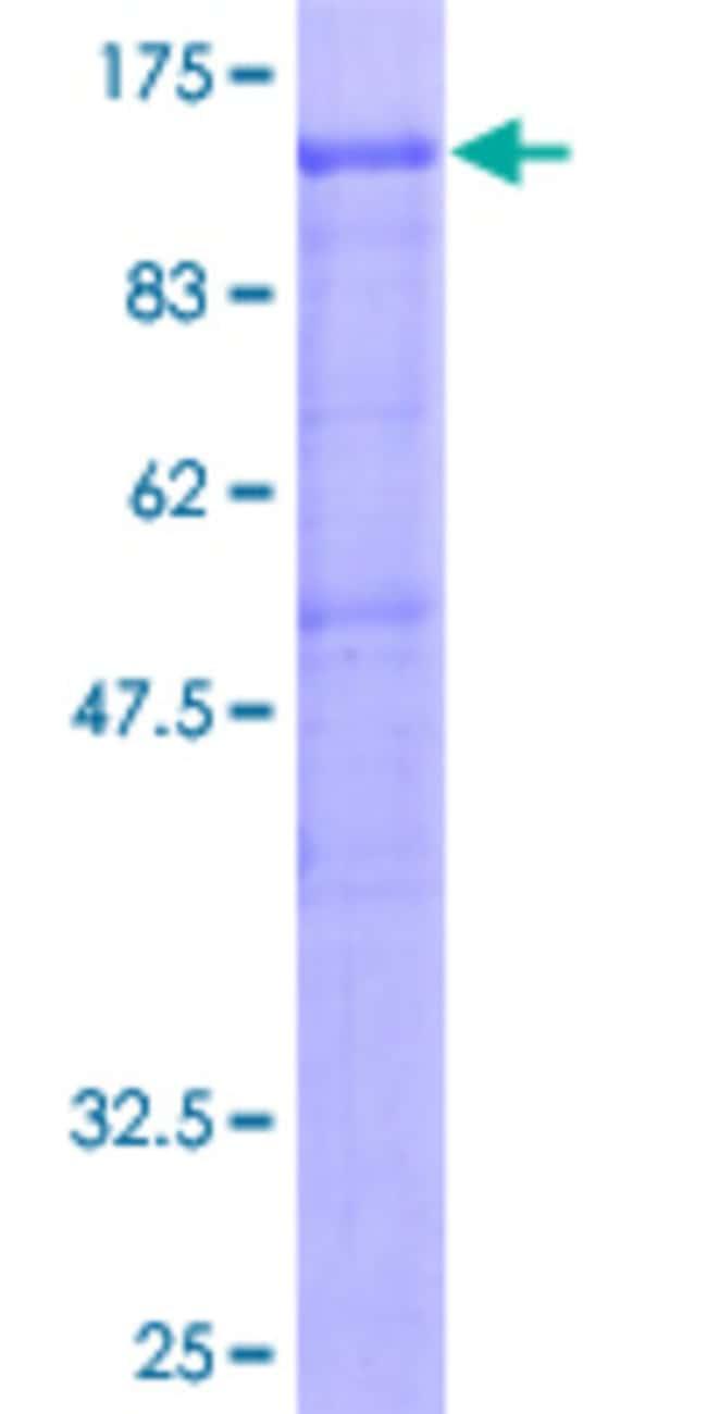 AbnovaHuman DDX20 Full-length ORF (AAH34953, 1 a.a. - 824 a.a.) Recombinant